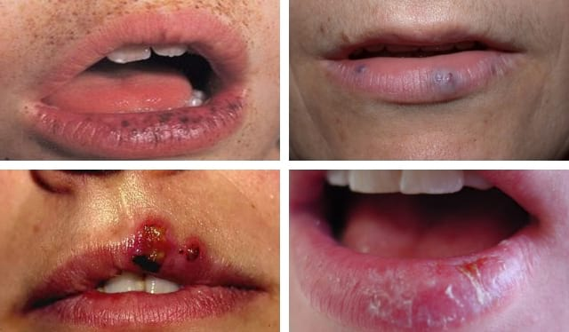 black spots on lips pictures