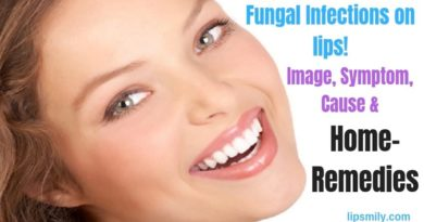 fungal infections on lips