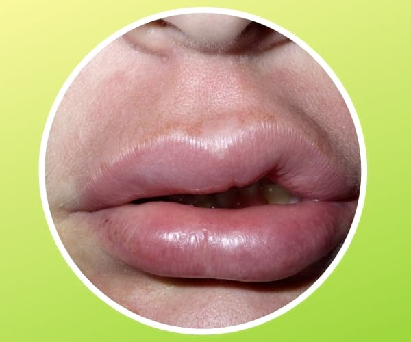 recurrent lip swelling